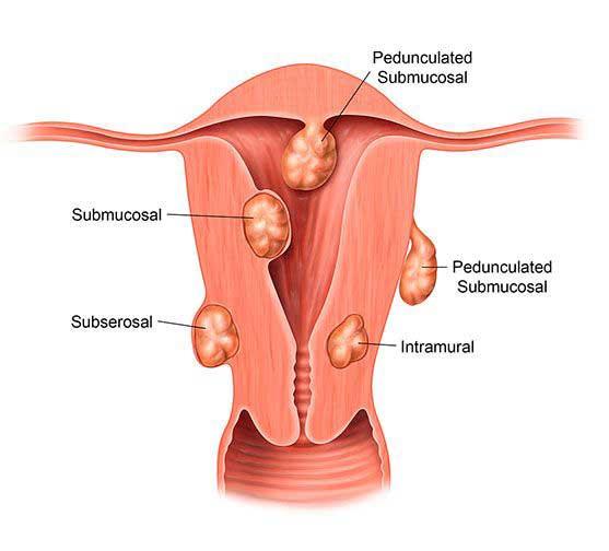 Uterine fibroids & infertility
