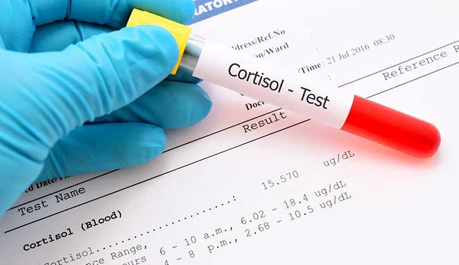 Too much Cortisol prevents weight loss