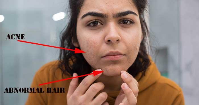 Abnormal Hair Growth