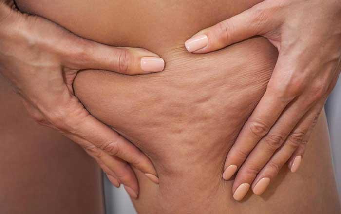 Cellulite caused by estrogen dominance