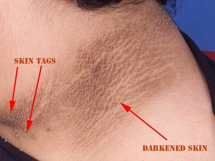 Darkened skin - Acanthosis Nigricans