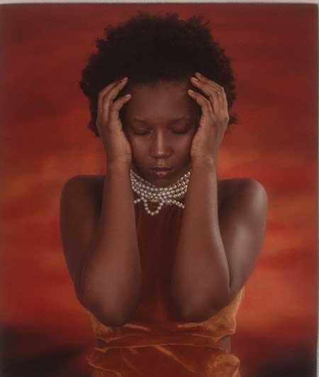 Headaches due to estrogen dominance