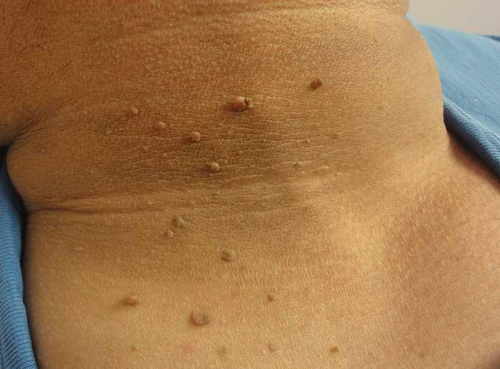 Skin tags & insulin resistance